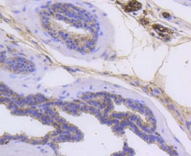 Cytokeratin14 Rabbit anti-Human, Clone: SC65-06, Novus Biologicals 100µL
