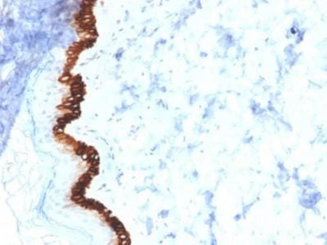 Cytokeratin 15 Mouse anti-Human, Clone: KRT15/2554, Novus Biologicals:Antibodies:Primary