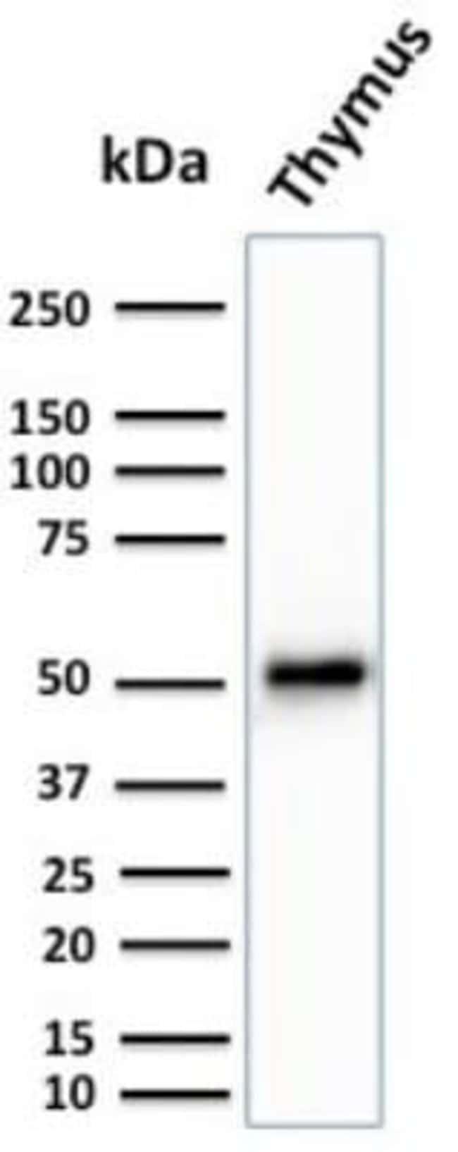 Cytokeratin 15 Mouse anti-Human, Clone: KRT15/2959, Novus Biologicals:Antibodies:Primary