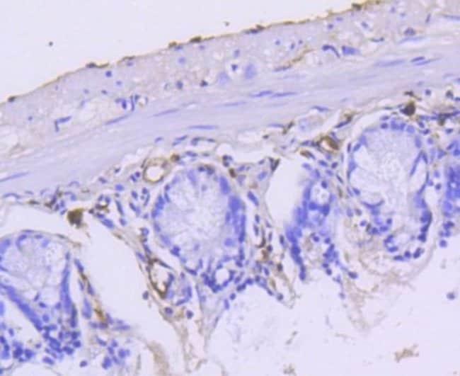Cytokeratin15 Rabbit anti-Human, Clone: ST04-85, Novus Biologicals 100μL:Antibodies