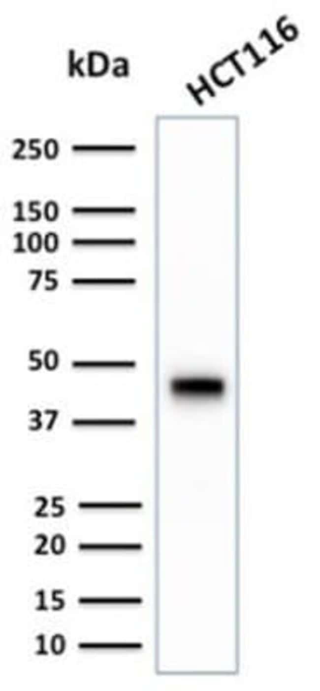 Cytokeratin 18 Rabbit anti-Human, Clone: KRT18/2808R, Novus Biologicals:Antibodies:Primary