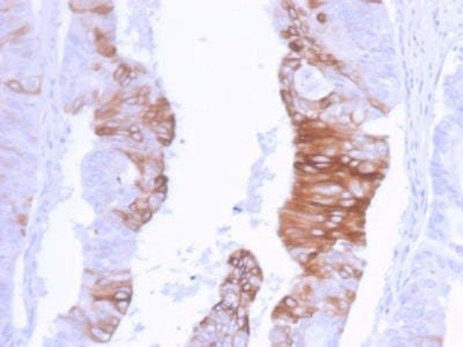 Cytokeratin 20 Rabbit anti-Human, Clone: KRT20/3129R, Novus Biologicals:Antibodies:Primary