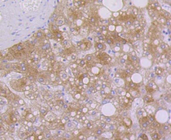 Cytokeratin7/13/17/18 Rabbit anti-Human, Clone: ST50-05, Novus Biologicals