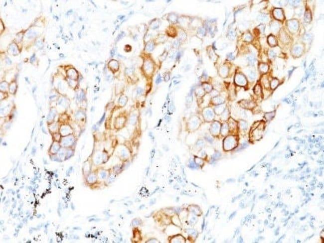 Cytokeratin 7/17 Mouse anti-Human, Bovine, Clone: C-46, Novus Biologicals:Antibodies:Primary