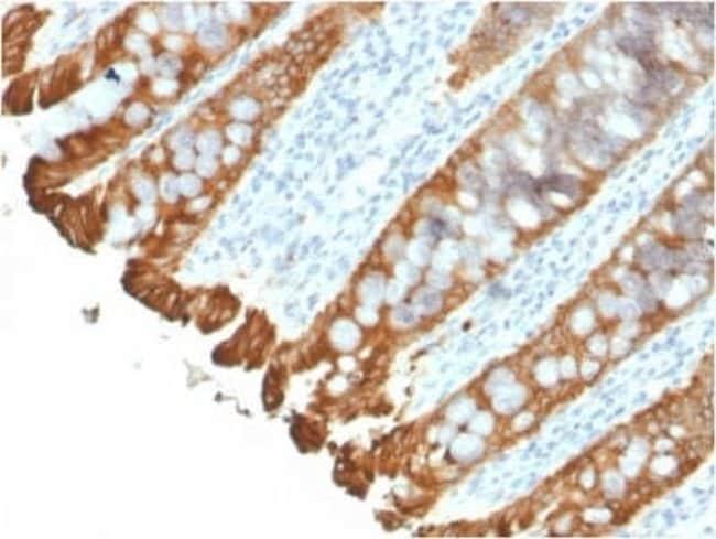 Cytokeratin 8/18 Rabbit anti-Human, Clone: KRT8.18/2297R, Novus Biologicals:Antibodies:Primary