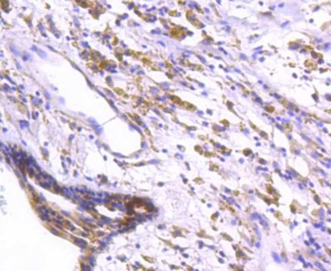 DARPP-32 Rabbit anti-Human, Clone: SU0329, Novus Biologicals 100μL:Antibodies