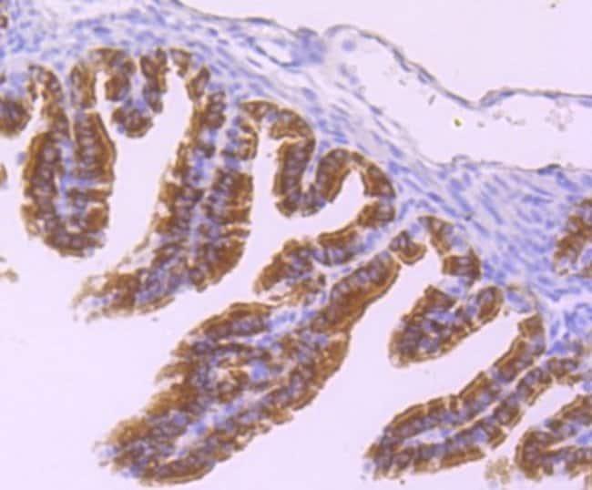 DNAI1 Rabbit anti-Human, Clone: JM11-38, Novus Biologicals 100μL:Antibodies