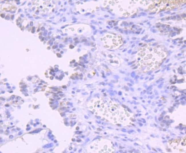 DNMT1 Rabbit anti-Human, Clone: JF09-89, Novus Biologicals 100µL