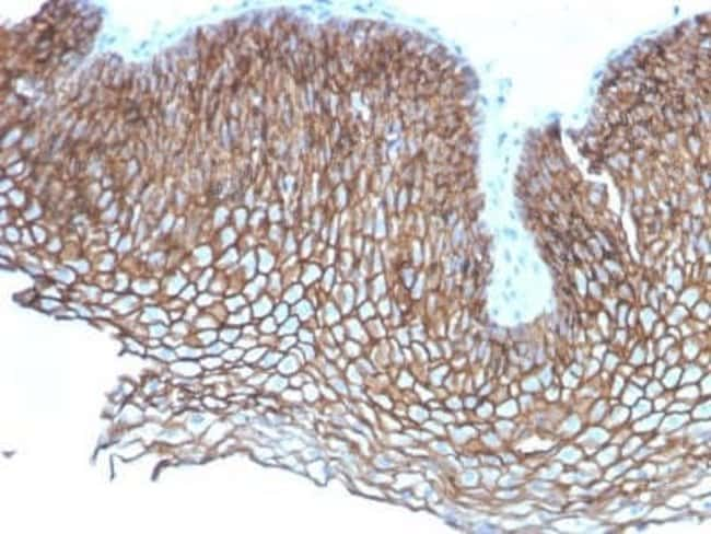 Desmoglein-3 Mouse anti-Human, Clone: DSG3/2837, Novus Biologicals:Antibodies:Primary