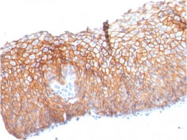 Desmoglein-3 Mouse anti-Human, Clone: DSG3/2840, Novus Biologicals:Antibodies:Primary