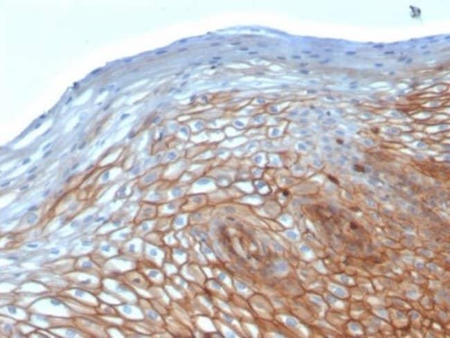Drebrin 1, Mouse anti-Human, Clone: DBN1/2880, Novus Biologicals:Antibodies:Primary