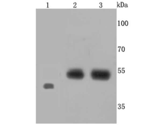 EDNRB/EndothelinRTypeB Rabbit anti-Human, Clone: JM74-10, Novus Biologicals