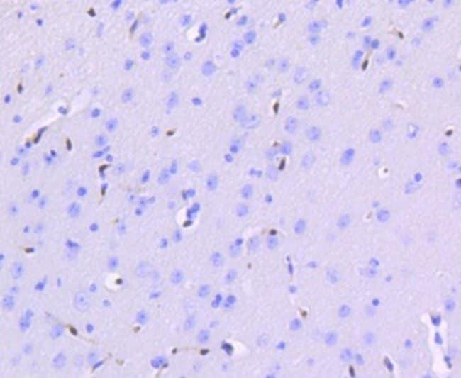 ERG Rabbit anti-Human, Clone: SP06-04, Novus Biologicals 100µL