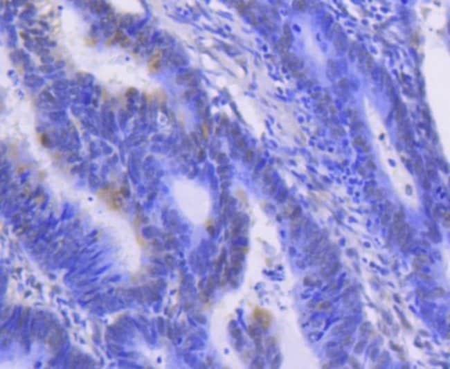 ERK1/2 Rabbit anti-Human, Clone: SP00-74, Novus Biologicals 100µL