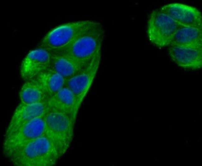 Ephrin-B2 Rabbit anti-Human, Clone: JM53-21, Novus Biologicals 100μL:Antibodies