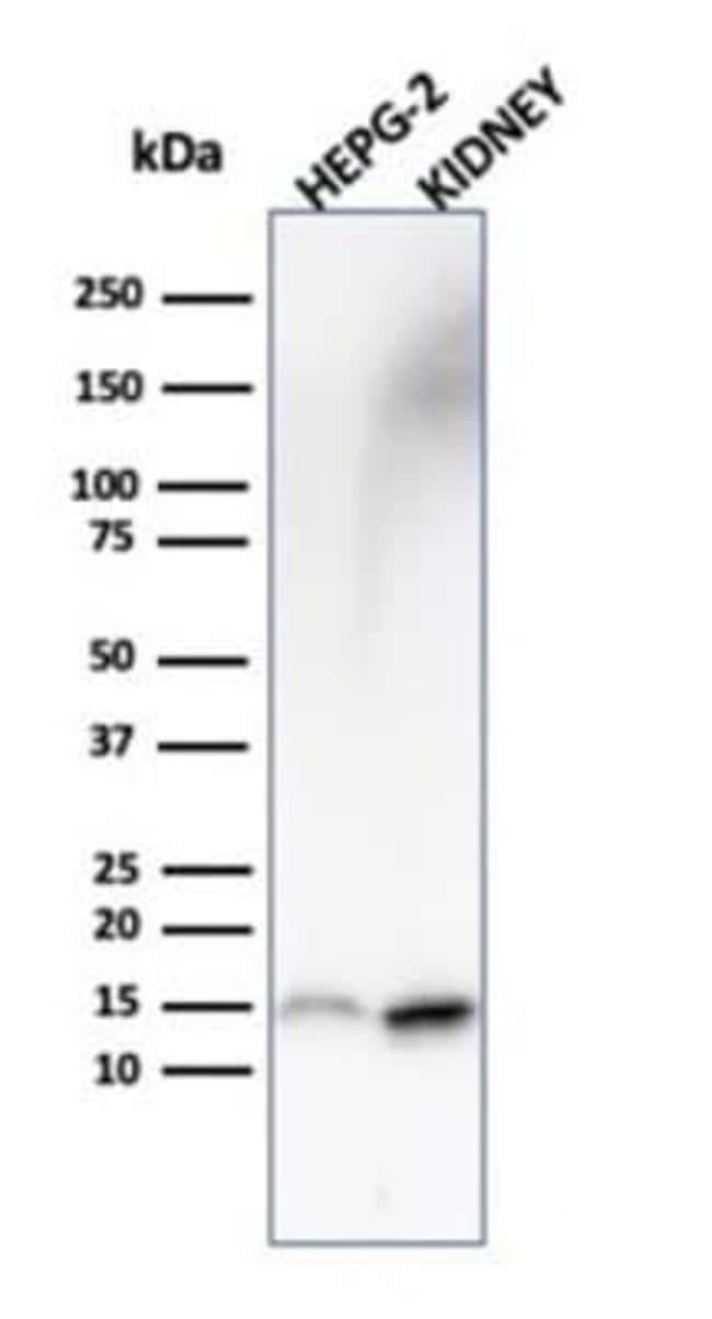 FABP1/L-FABP Mouse anti-Human, Clone: FABP1/3487, Novus Biologicals:Antibodies:Primary