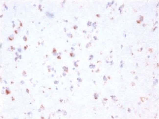 FCRN/FCGRT Mouse anti-Human, Clone: FCGRT/2932, Novus Biologicals:Antibodies:Primary