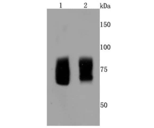 FMRP Rabbit anti-Human, Clone: JM91-41, Novus Biologicals 100μL:Antibodies