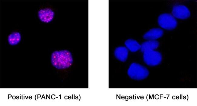 FOXL2 Mouse anti-Human, Clone: 1019104, R 25 µg; Unconjugated