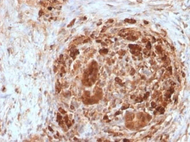 Ferritin Mouse anti-Human, Clone: FTH/2082, Novus Biologicals:Antibodies:Primary