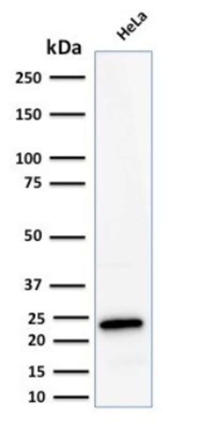 Ferritin Light Chain Rabbit anti-Human, Clone: FTL/2338R, Novus Biologicals:Antibodies:Primary