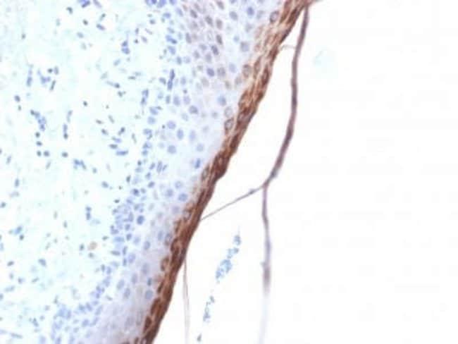 Filaggrin Rabbit anti-Human, Clone: FLG/1957R, Novus Biologicals:Antibodies:Primary