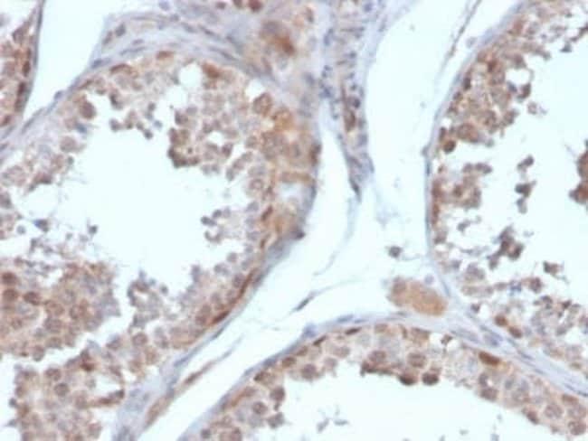 Follistatin Mouse anti-Human, Clone: FST/4281, Novus Biologicals:Antibodies:Primary