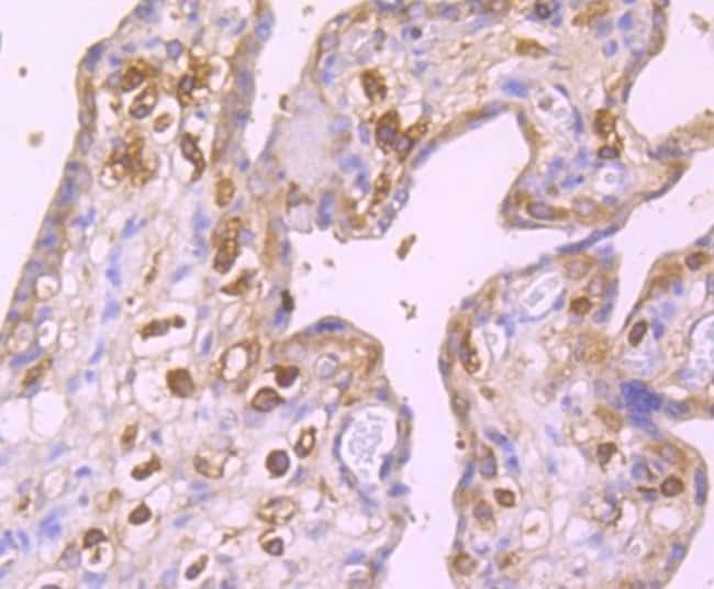 GABARAP Rabbit anti-Human, Clone: JM30-30, Novus Biologicals 100µL