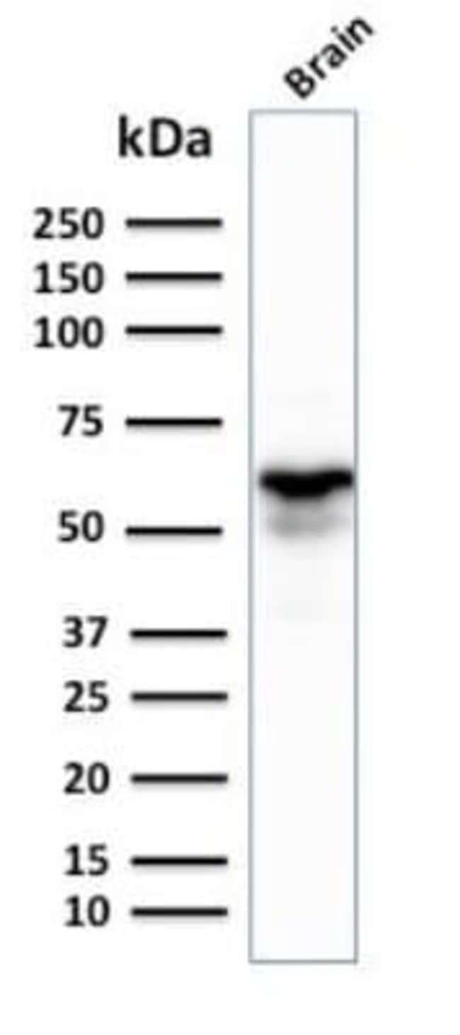 GAD1/GAD67 Mouse anti-Human, Clone: GAD1/2391, Novus Biologicals:Antibodies:Primary