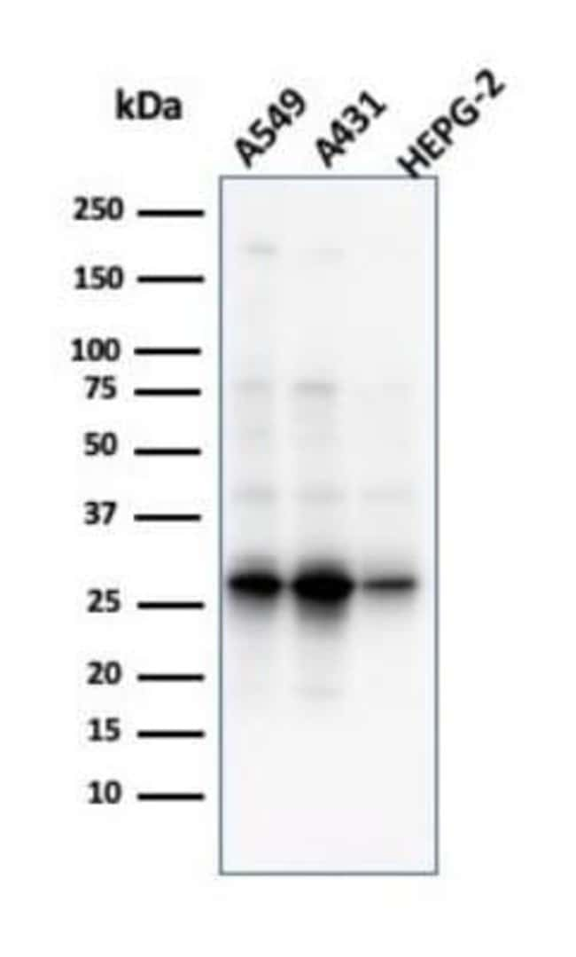 GCLM Mouse anti-Human, Clone: CPTC-GCLM-1, Novus Biologicals:Antibodies:Primary