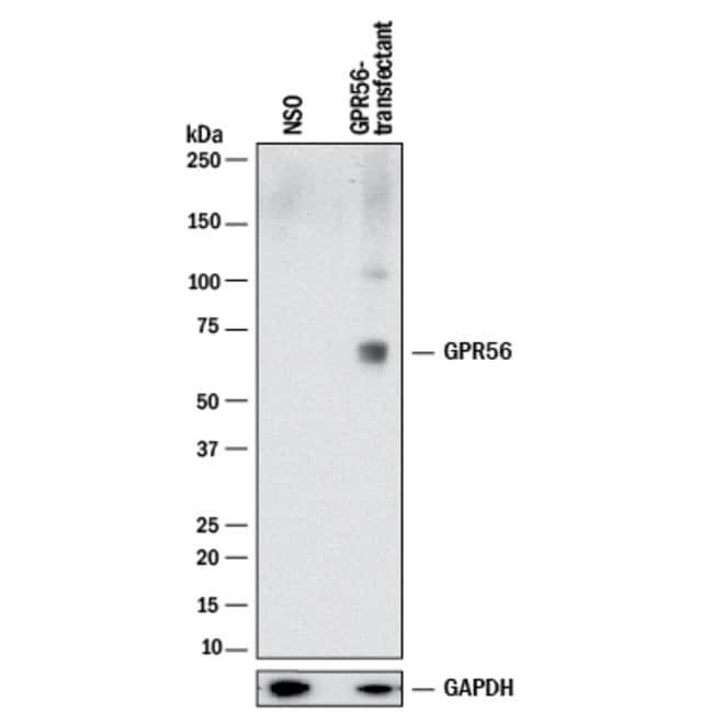 GPR56, Rabbit anti-Human, Clone: 2446B, R:Antibodies:Primary Antibodies