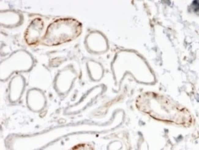 GTF2H2C Mouse anti-Human, Clone: PCRP-GTF2H2C-2C9, Novus Biologicals:Antibodies:Primary