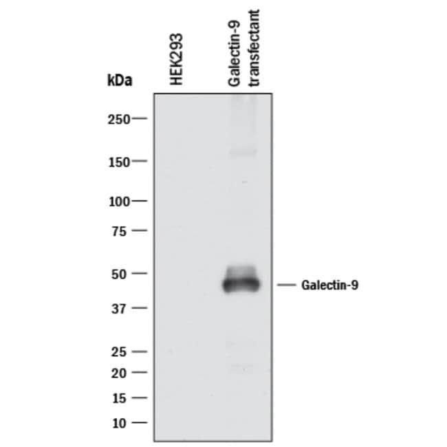 Galectin-9, Mouse anti-Human, Clone: 1015227, R:Antibodies:Primary Antibodies