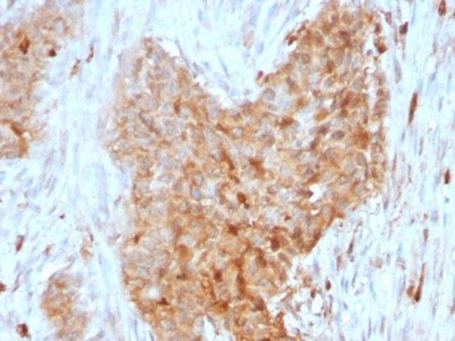 Glucose 6 phosphate isomerase, Mouse anti-Human, Clone: CPTC-GPI-1, Novus