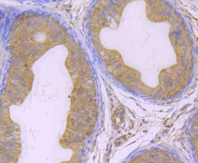 Glutathione Peroxidase 4/GPX4 Rabbit anti-Human, Mouse, Rat, Zebrafish,