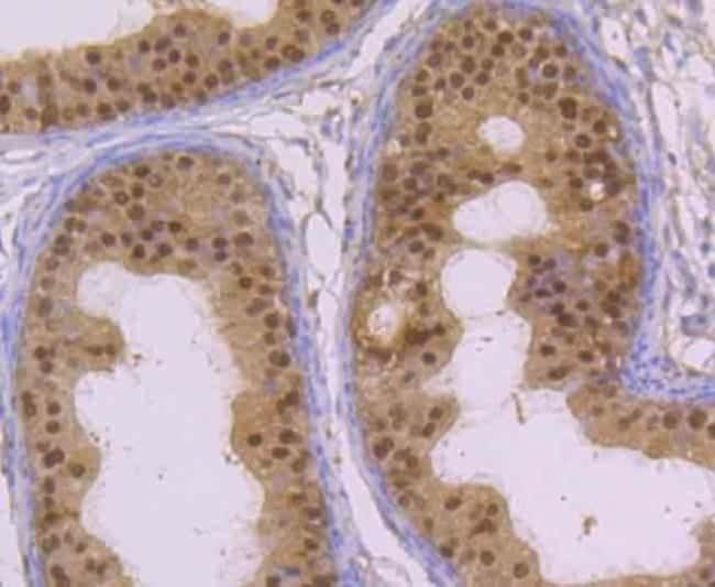 Glyoxalase I Rabbit anti-Human, Mouse, Rat, Clone: JU44-11, Novus Biologicals