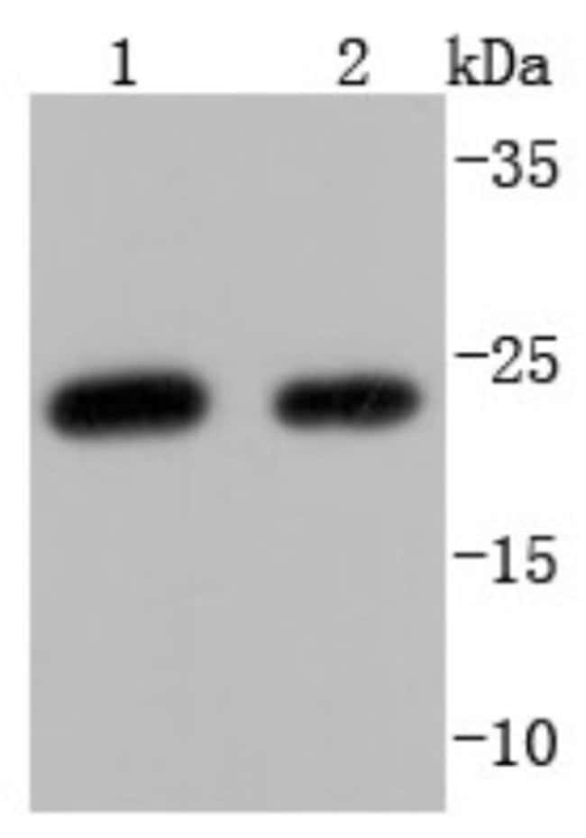 HE4/WFDC2 Rabbit anti-Human, Clone: JF62-09, Novus Biologicals 100µL