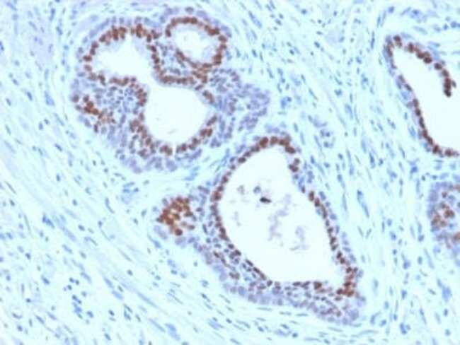 HNF-3 alpha/FoxA1 Rabbit anti-Human, Rat, Clone: FOXA1/2230R, Novus Biologicals:Antibodies:Primary