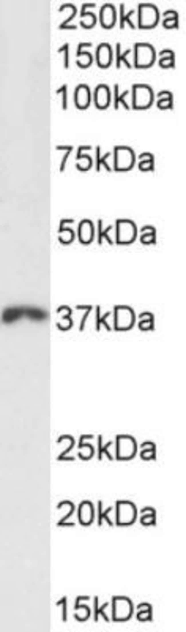 HOXD13 Goat anti-Rat, Polyclonal, Novus Biologicals 100 µg; Unconjugated