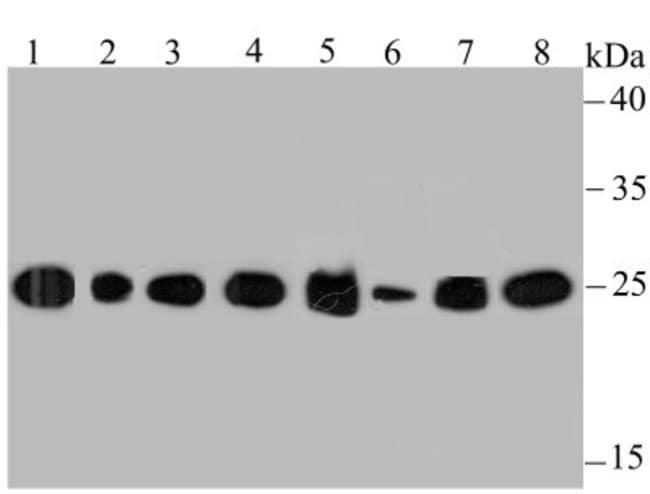 HPRT Rabbit anti-Human, Mouse, Rat, Zebrafish, Clone: JU03-26, Novus Biologicals