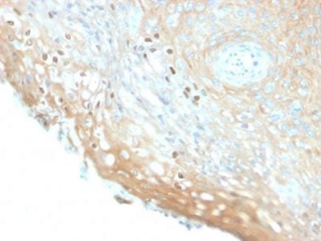 HPV16 Rabbit anti-Virus, Clone: HPV16/2058R, Novus Biologicals:Antibodies:Primary