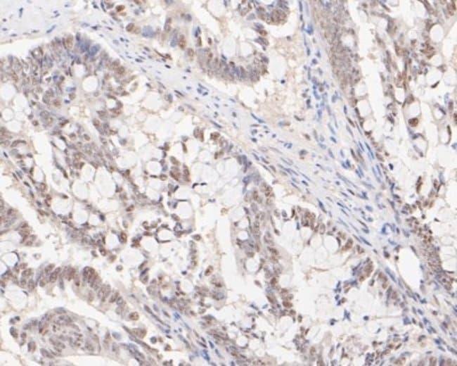 HSF2, Rabbit anti-Human, Clone: JE48-40, Novus Biologicals 100 uL; Unconjugated