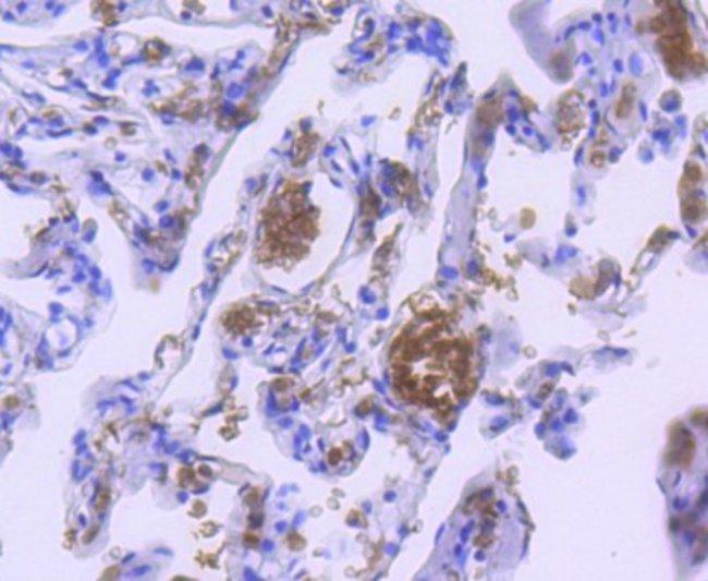 Hemoglobin A1 Rabbit anti-Human, Mouse, Rat, Clone: SN70-09, Novus Biologicals