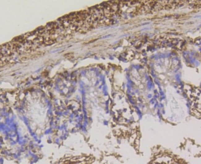 Hexokinase1 Rabbit anti-Human, Clone: ST47-05, Novus Biologicals 100µL