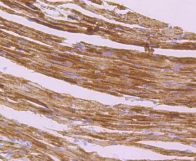 IDH2 Rabbit anti-Human, Clone: JA55-31, Novus Biologicals 100µL