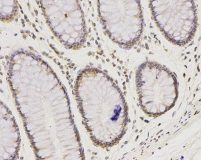 IFN-alpha/beta R1 Mouse anti-Human, Mouse, Clone: A5-A3, Novus Biologicals