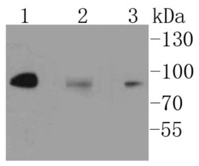 IKKbeta Rabbit anti-Human, Clone: SN63-02, Novus Biologicals 100μL:Antibodies