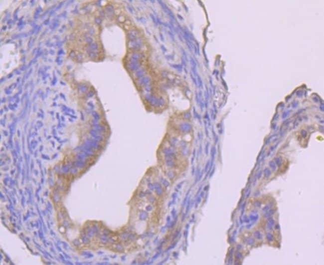 IKKgamma Rabbit anti-Human, Clone: JA11-83, Novus Biologicals 100μL:Antibodies