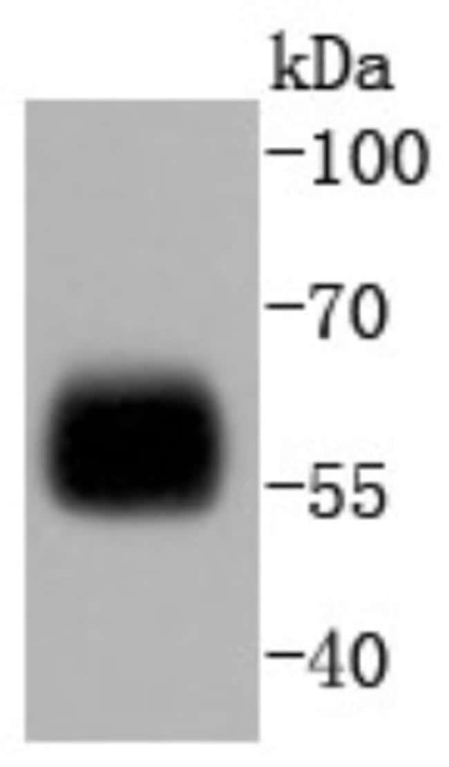 IRF5 Rabbit anti-Human, Clone: SD203-07, Novus Biologicals 100µL