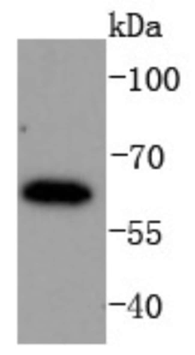 IRF6 Rabbit anti-Human, Clone: SD202-6, Novus Biologicals 100μL:Antibodies